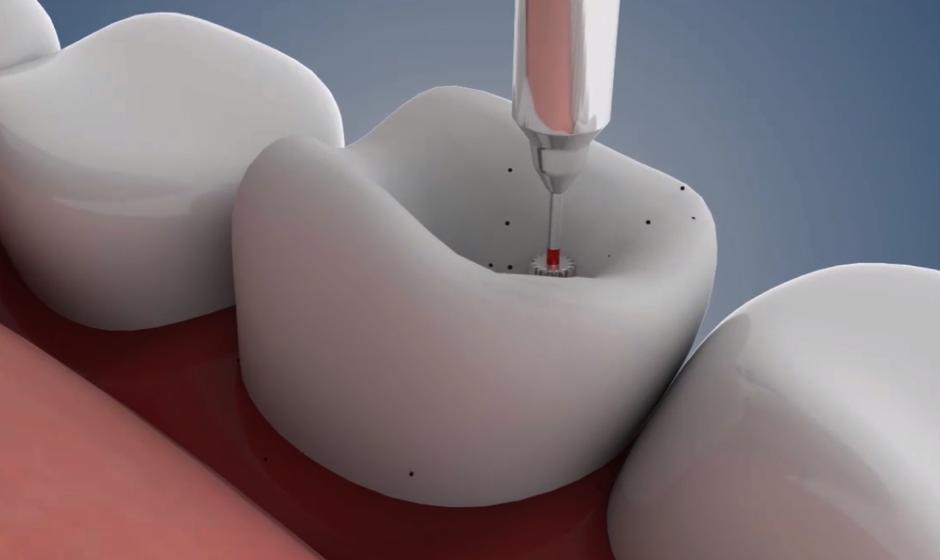 3-D animation visualizing a dental procedure