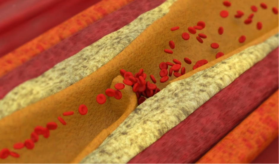 Animation showing how a coronary blockage occurs